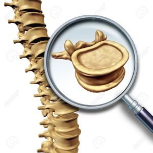 46714057-vertebra-vertebral-column-human-spine-concept-as-medical-health-care-anatomy-symbol-with-the-skeleta